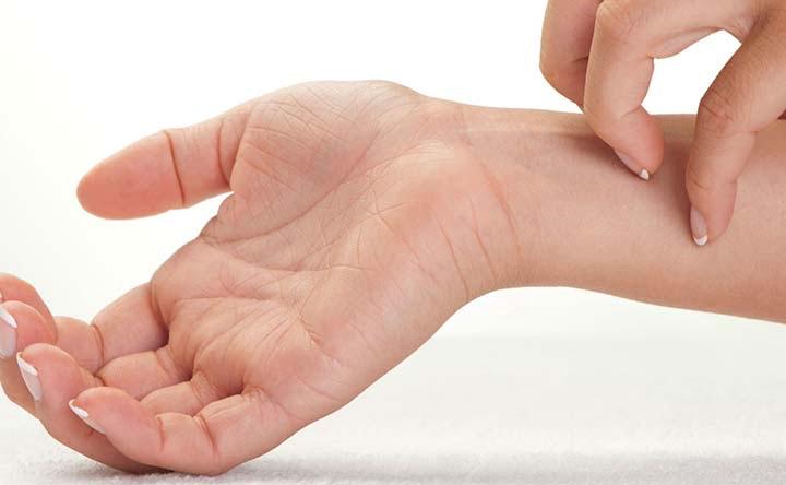 Dermatite atopica: previenila e curala con i probiotici