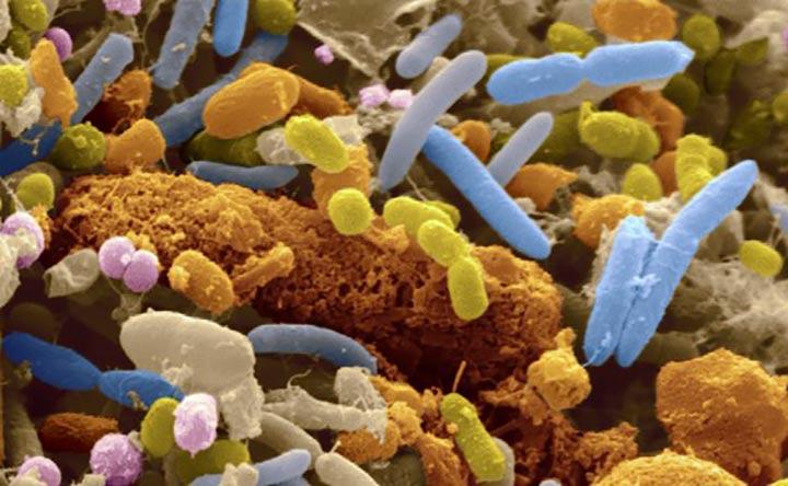 Identificata l'origine delle malattie infiammatorie intestinali, lo studio