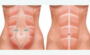 Diastasi addominale: cos'è e come comportarsi
