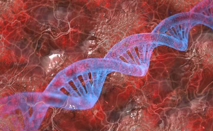 Scoperto un legame tra l'infezione intestinale e il morbo di Parkinson?